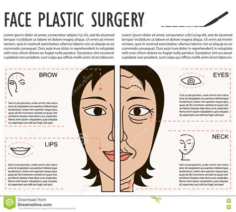 surgery information understanding surgery surgery a to z rhinoplasty cartoons illustrations vector stock images