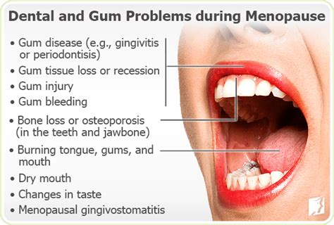 Gums Pulling Away From Teeth Home Remedy by Gum Problems Symptom Information 34 Menopause Symptoms