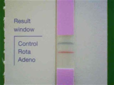 Undigested Carrots In Stool by Kami Ube Pediatric Clinic White Color Stool In Rotavirus