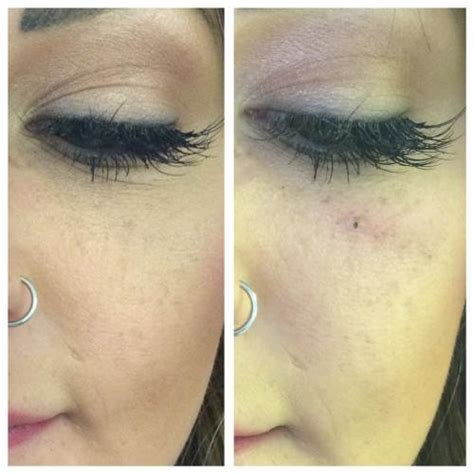 Tattoo Eyebrows Middlesbrough | beauty spots tattooing middlesbrough redcar