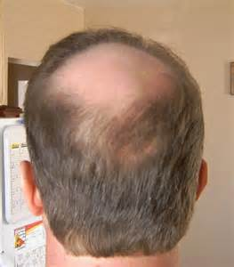 hair transplant month by month pictures hair transplant blog bobman s hair loss story hair