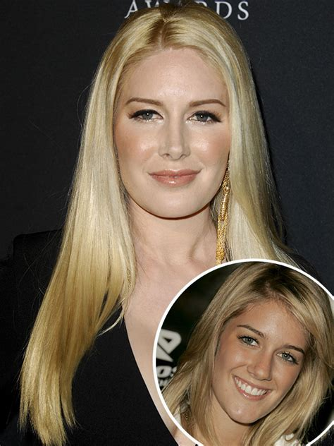 heidi montag without extensions heidi montag almost died during plastic surgery see her