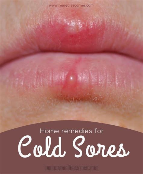 cold sores home remedies for you 10 effective home