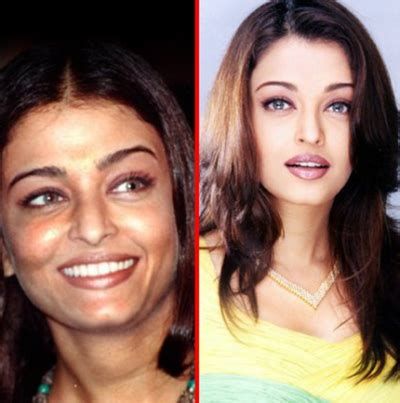 Passes Out In Bathroom Requires Plastic Surgery by Aishwarya Plastic Surgery Makeupandbeauty