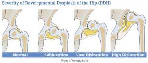 hip dysplasia home treatment about hip dysplasia healthy hips australiahealthy hips