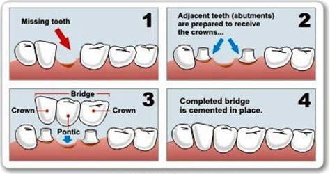 quanto costa una protesi dentaria mobile ponte dentale tutto sui ponti dentali in ceramica