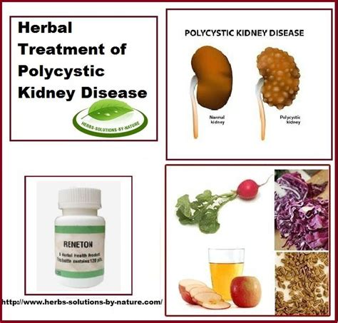 kidney failure treatment foods to avoid if you polycystic kidney disease foodfash co