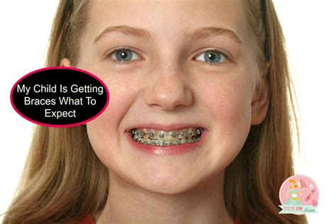Kid With Braces Meme - what to expect when your child gets braces stay at home mum
