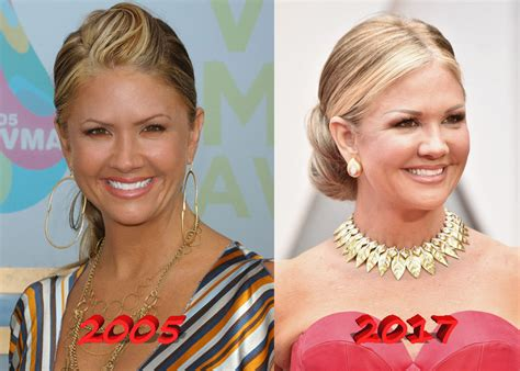 nancy odell plastic nancy o dell joins the list of plastic surgery stars