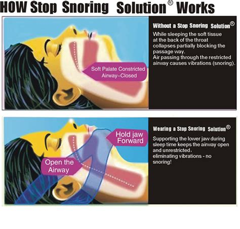7 Tips To Stop Snoring by 1st Stop Snoring Chin Snore Belt Anti Apnea Jaw