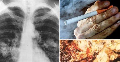 cigarettes  safe    electronic