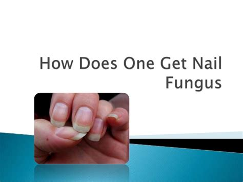 How Do You Get Nail Furniture by How Do You Get Nail Fungus