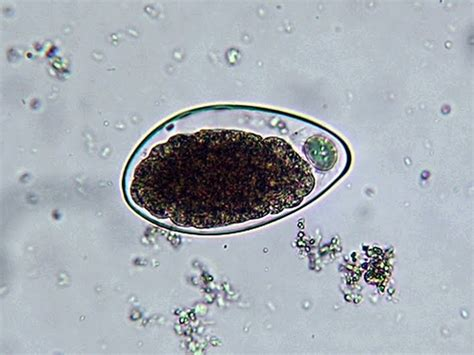 Hookworm Eggs In Stool by With Microbiology What S Buggin You Hookworm