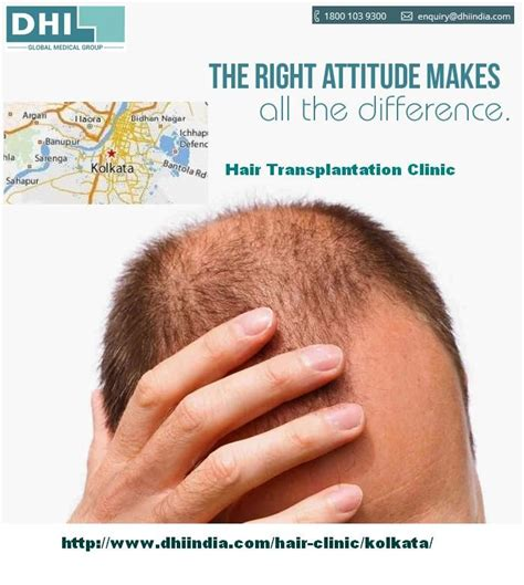 dhi hair transplant reviews dhi hair transplant bangalore reviews om hair