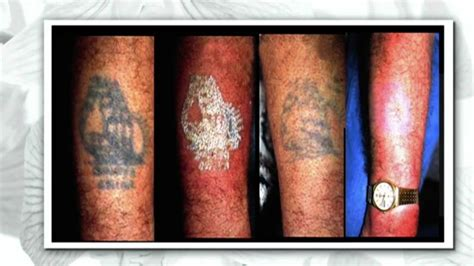 picosure laser tattoo removal treatment on the steven and