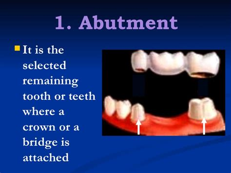 Cd E Book Planning And Crowns And Bridges 1 fixed partial denture finals1