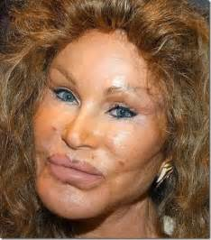 Hell Bunny Vanity Dress A Plastic Surgeon Tells Us What Is Up With Bruce Jenner S Face