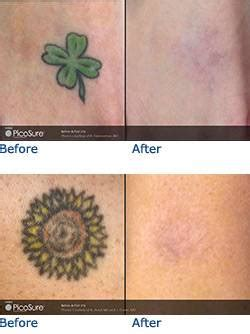 tattoo removal austin removal picosure laser removal