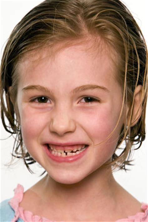 wann braucht eine feste zahnspange 183 wann braucht mein eine zahnspange