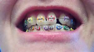 colorful braces dksurromama ouch