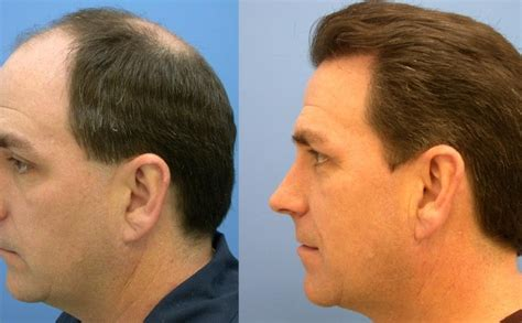 hair transplant cost in tianjin china hair transplant price answer how much is hair transplant
