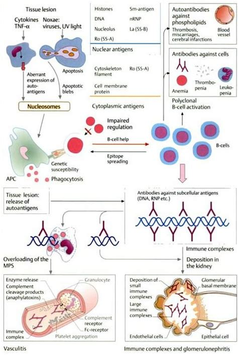 diagram sle from quot color atlas of immunology quot by gerd burmester