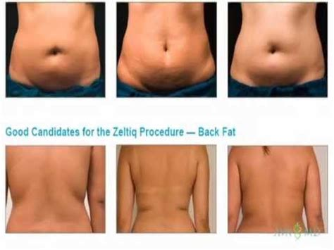 freeze away with coolsculpting by zeltiq