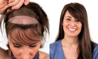 The Hair Clinic Non Surgical Hair Transplant For At The Hair Clinic