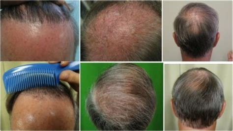 transplant hair from chest to head body hair to head transplant using 5500 ugrafts from the