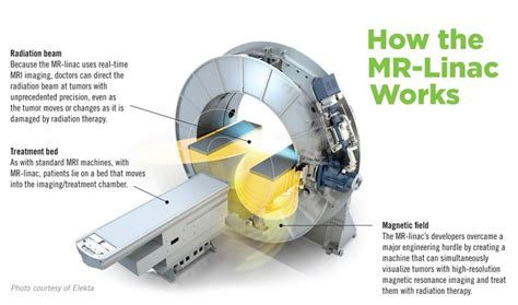 mr linac radiation therapy cancer treatment froedtert