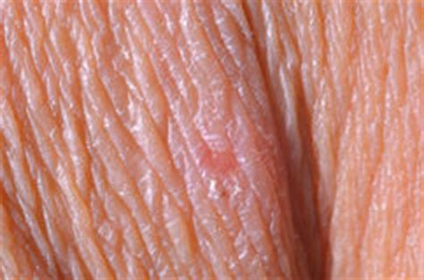 up human skin macro epidermis stock photo image of anatomy freckles 36429390 up human skin macro epidermis stock photo image of anatomy freckles 36429390