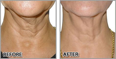 rejuvapen for neck before and after rejuvapen and prp sei bella med spa