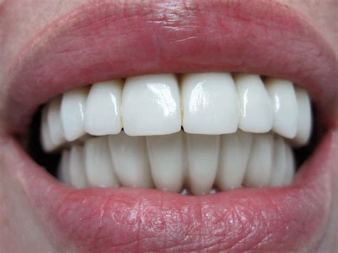 precios de fundas dentales cl 237 nica dental boca boca m 225 laga costa sol corona