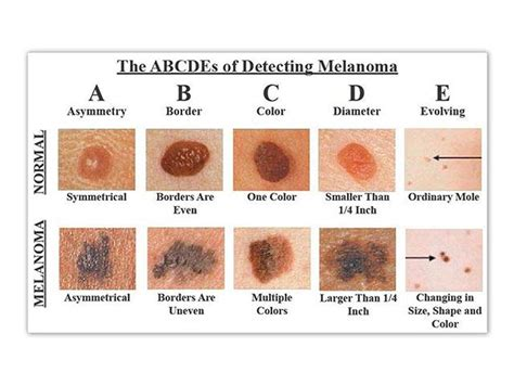 Show Me Pictures Of Melanoma