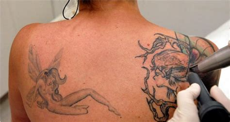 no regrets tattoo removal erasing tattoos out of regret or for removal