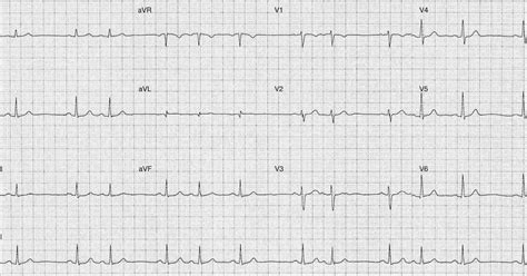 ecg pattern meaning ecg of the week ecg of the week 24th june 2013