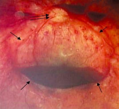 challenging  pathophysiologic connection  subdural hematoma retinal hemorrhage
