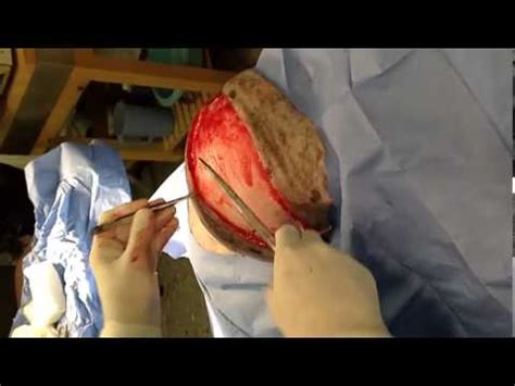 fatty tumor on getting bigger veterinary surgeon removes lipoma fatty tumor from a