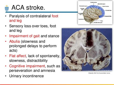 Brain Blindness Pathology Of Stroke Amp Cva