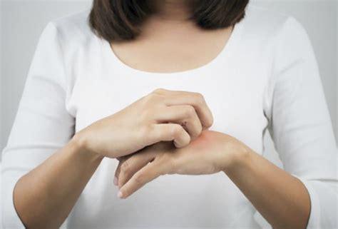 dermatite atopica alimentazione dermatite atopica cause e rimedi
