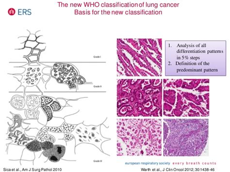 lepidic pattern meaning practical approach to lung cancer