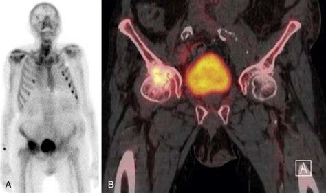 bone metastases radiology key