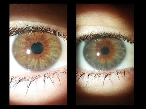 surgical eye color change eye color change before and after www pixshark