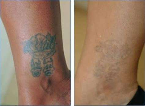 get rid of tattoo get rid of your with the service of laser