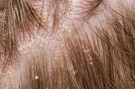 schuppen ekzem 頭皮湿疹のかさぶたを剥がすのは止めましょう 正しい対処方法について 何度も繰り返す頭皮湿疹にサヨナラ