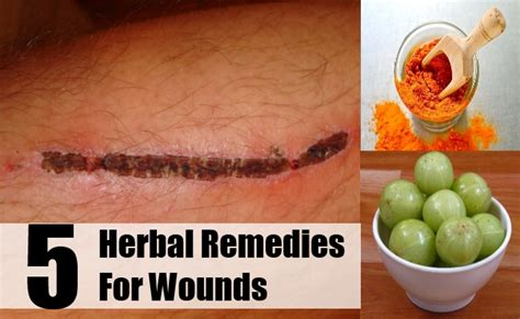 top 5 herbal remedies for wounds how to treat wounds