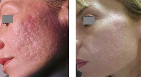 mederma tattoo removal royalskinclinic co2 fractional laser resurfacing