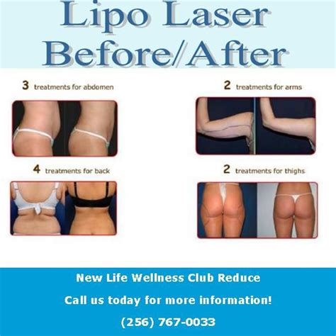 lipo light treatment reviews 28 best i lipo before and after images on pinterest