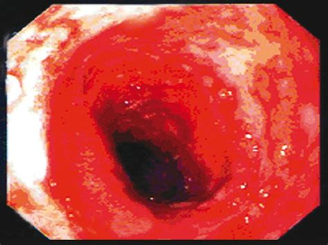 Stool After Colonoscopy by Ulcerative Colitis In Infancy Rukunuzzaman M Karim Ab