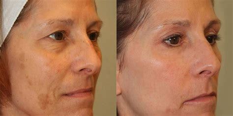 co2 fractional skin resurfacing englewood co colorado